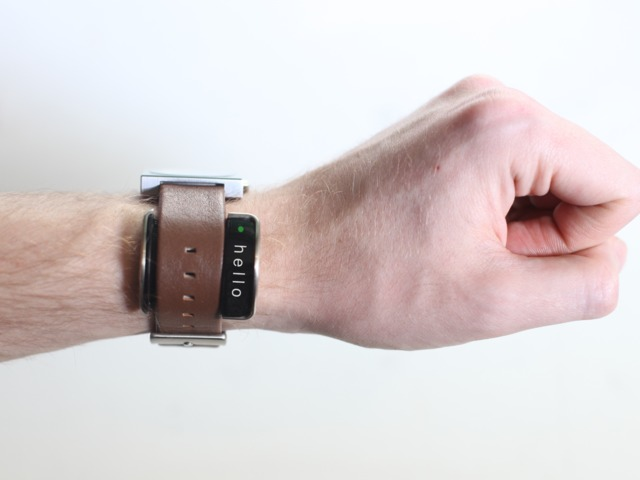 Glance: World's first smart accessory for your watch by Glance Team — Kickstarter