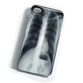 The Curious Case LLC - iPhone XRay Case